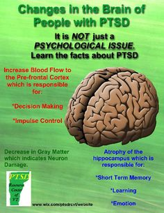 Scientists published findings in the Archives of General Psychiatry identifying the first clear evidence that smaller amygdala volume is associated with PTSD, regardless of the severity of trauma.But there's still a chicken-or-the-egg question:Is the phys Traumatic Brain Injury, Post Traumatic, Ptsd Awareness, Mental Health Awareness, Complex Ptsd, Stress Disorders, Mental Disorders, After Life, Mental Illness