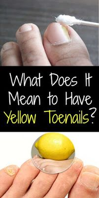 What Does It Mean to Have Yellow Toenails? Treatment and Causes!