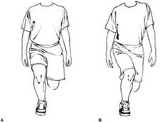 Trochanteric bursitis. Commonly, patients will have tightness in the hip flexor, quadriceps muscles and IT band. Stretching is beneficial  to improve biomechanics and movement patterns. Improve control and muscle endurance of the gluteus medius muscle. Do lunges or step-downs/ups in front of a full-length mirror.  Keephips level and learn to not let the hip drop while in single leg stance.