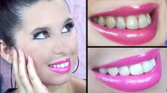 The quantity of individuals who are either acquiring a commercial teeth whitening product to do in your home or visiting their dental professional for a teeth whitening treatment has actually grown significantly. Whitening Skin Care, Teeth Whitening Remedies, Teeth Whitening System, Natural Teeth Whitening, Tartar Removal, White Teeth, Cosmetic Dentistry, Teeth Cleaning