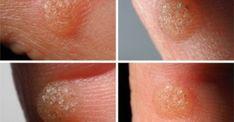 Κονδυλώματα: Αν δείτε αυτά τα σημάδια στο σώμα σας, κάντε εξέταση για HPV! ΦΩΤΟ