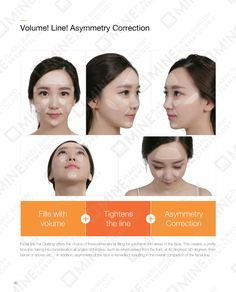 Find the best Korean Thread Lifting Cost, Procedure & Recovery in Seoul, South Korea at Mine Clinic. It uses a blend of threads to ensure that the thinner and deeper layers of skin are all lifted. Thread Lift, Face Lines, Layers Of Skin, Anti Aging Skin Care, Three Dimensional, Pretty Face, Facial, Fat, Facial Treatment