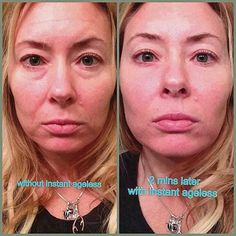 Within 2 minutes, Instantly Ageless reduces the appearance of under-eye bags, fine lines, wrinkles and pores, and lasts 6 to 9 hours. Anti Aging Skin Care, Natural Skin Care, Under Eye Bags, You Look Beautiful, Puffy Eyes, Things To Sell, 10 Years, Ageless Beauty, Bye Bye
