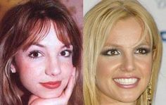 Britney Spears Plastic Surgery Before and After Photos, Pics – Nose Surgery