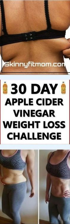 10 benefits of Apple Cider Vinegar for weight loss in 30 days
