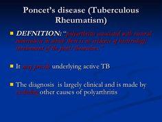 Poncet disease - Tubercular Rheumatism ( TB + Joint involvement / Polyarthritis )