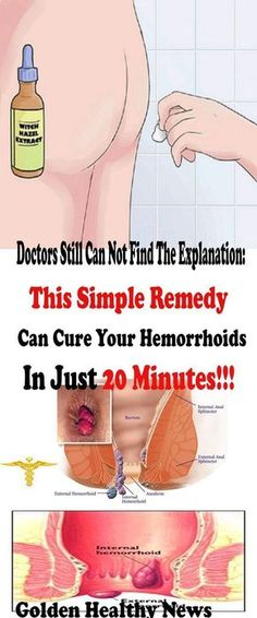 Hemorrhoids are one of the most annoying and painful diseases you can develop. They occur in an uncomfortable and unreachable area as a result of the swelling of veins and blood vessels around the …