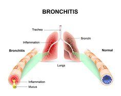 「bronchitis」気管支炎 気管の炎症が原因
