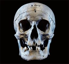 Skull of John Bellingham