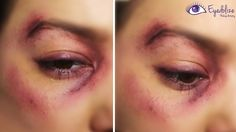 I Got Punched!! Bruised Black Eye Makeup Tutorial by EyedolizeMakeup