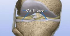 THIS IS HOW TO REGENERATE YOUR KNEE CARTILAGE!
