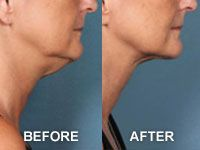 More before and after photos of Kybella patients.
