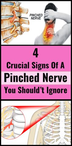 4 Crucial Signs of a Pinched Nerve You Really Should't Ignore, , health fitness nutrition, Wellness Fitness, Fitness Diet, Health And Wellness, Health Fitness, Health Care, Health Advice, Health Articles, Health Diet, Pinched Nerve In Neck