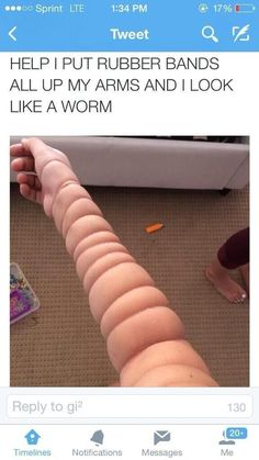 Worm arm: | 28 White People Who Need To Be Stopped Right Now