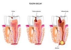 #Cavity : That's a #sticky, #slimy substance made up mostly of the #germs that cause #toothdecay. The bacteria in your mouth make acids and when #plaque clings to your #teeth, the #acids can eat away at the outermost layer of the #tooth, called the #enamel. For #best #dentalimplants all at +91 98155-02453, You will get a right solution.  For more details visit us https://goo.gl/MmFGWu #DentalBhaji #Chandigarh #Mohali #India