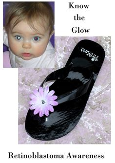Retinoblastoma Awareness. Discovered from pics using the flash. Know the glow...
