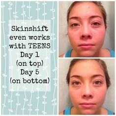 SKINSHIFT is for everyone at any age. Teens are loving the results they are seeing in just a few days of beginning the line. 4 easy products that are yielding HUGE results. Your DNA your skincare. www.myskinshift.com #skincare #yourDNAyourSKINCARE #nomoreguessing!