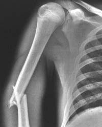 X-rays of Broken Bones   Fractured Humerus