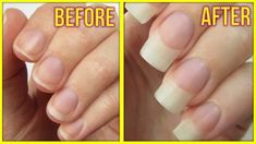 Can't get those nails to grow? No worries, we've got the perfect DIY nail growth serum for you! With all natural ingredients, and proven to work, this DIY nail growth serum will not only make Make Nails Grow, Grow Long Nails, Grow Nails Faster, Hard Nails, Long Fingernails, Nail Growth Treatment, Vitamin H, Brittle Nails, Strong Nails