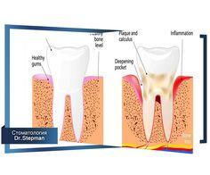 КРОВОТОЧИВОСТЬ ДЕСЕН #полезное #статья #зубы #стоматология  Обычно кровоточивость возникает при чистке зубов щеткой. Иногда прием пищи может вызвать появление крови во рту. Она истекает из края десны при воспалении его слизистой оболочки (см. Гингивит). Особого внимания требуют случаи, когда уход за полостью рта достаточен, а сосудистые изменения десны сохраняются или вновь возникают, и кровоточивость продолжается. Причиной этого могут быть различные заболевания общего характера: крови…