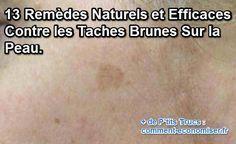 13 traitement naturels pour faire disparaitre les taches brunes sur le visage