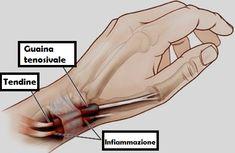 La tenosinovite è una malattia che causa gonfiore alla guaina che circonda il tendine, provocando un dolore tanto forte da diventare invalidante. Anche se i sintomi risultano molti simili a quelli dell'artrite, la tenovisivite non va confusa con quest'ultima.