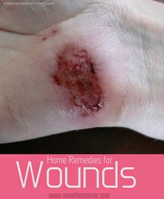 Home Remedies for Wounds | Remedies Corner