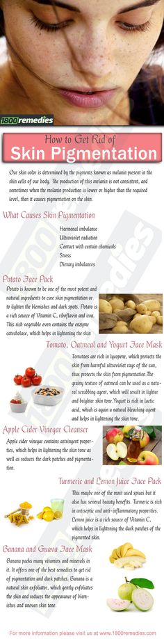 Cystic Acne Remedies Cystic acne can be called as a form of abscess which is shaped when oil ducts get clogged and infected. Generally, cystic acne is Natural Acne Remedies, Home Remedies For Acne, Skin Care Remedies, Cystic Acne Treatment, Skin Treatments, Acne Skin, Acne Scars, Getting Rid Of Freckles, Homemade Skin Care