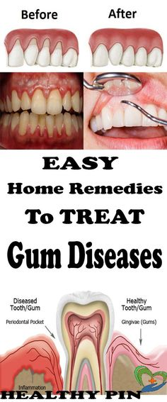Gingivitis, usually known as gum disease, is a dental issue characterized by symptoms like constant bad breath, red or swollen gums and very sensitive, sore gums that may bleed. If left untreated, it can advance to periodontitis and become a very serious issue.Poor oral hygiene, resulting in plaque buildup is the primary cause of gum …