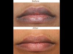 Pink Lips Please – How to Get Rid of Dark Lips Naturally Beauty and MakeUp Tips Natural Beauty Tips, Health And Beauty Tips, Health Tips, Skin Tips, Skin Care Tips, Beauty Care, Beauty Skin, Beauty Secrets, Beauty Hacks