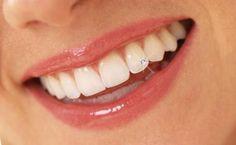 Dental Piercings - Page 3 Dental Teeth, Got The Look, Cosmetic Dentistry, Teeth Whitening, Ear Piercings, Health Tips, Cosmetics, Instagram, Beautiful