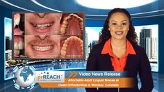Affordable Adult Lingual Braces at Owen Orthodontics in Windsor, Colorado  http://www.prreach.com/?p=20297