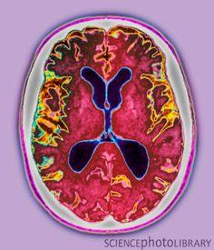Alzheimer's disease, MRI scan