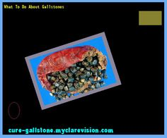 What To Do About Gallstones 145619 - Cure Gallstone