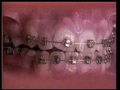Vintage Time-Lapse Video of Braces Straightening an Extremely Crooked Set of Teeth. This is really cool to me.