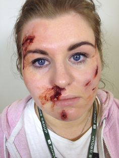 Full face of the accident