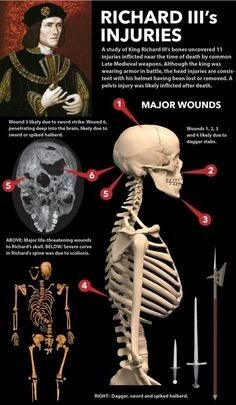 """strangeremains: """"A study of King Richard III's bones uncovered 11 injuries inflicted near the time of death by common Late Medieval weapons. Read the full article at. Uk History, Tudor History, European History, British History, History Facts, World History, Ancient History, Family History, History Timeline"""