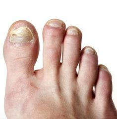Wow! Natural Remedies for Toenail Fungus That Work A Treat! -- Finally get rid of those unsightly looking nails for good with these terrific home remedies...