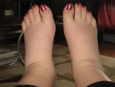Home Remedies for Swelling Feet – This is what I looked like last time.  Really hoping to prevent it this time around.  It's not just ugly...it hurts!
