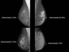 súlycsökkenés és rendellenes mammogram