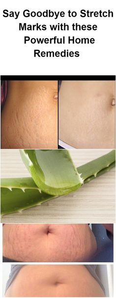 say-goodbye-to-stretch-marks-with-these-6-powerful-home-remedies-proven-to-work-1