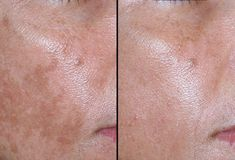 Melasma Before and After Find out about age spot reduction solutions.