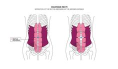 Abdominal Separation/Diastasis Recti after Pregnancy Prevention and Workout Postpartum Abs Workout Video, Ab Workout Men, Prenatal Workout, Mommy Workout, Workout Plans, All About Pregnancy, Second Pregnancy, After Pregnancy, Pregnancy Diary