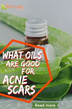 Did you know that the oils that can help with sleep, stress, and energy can also be a cure for acne scars. Read more about acne scars at theskincarereviews.com #acne #acnescars #acnemarks Scar Remedies, Skin Care Remedies, Natural Remedies, Best Acne Products, Skin Products, Clear Skin Tips, Natural Treatments, Pimple Marks
