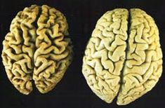 """A recent study on brain shrinkage was completed showing vegans and vegetarians had significantly smaller brains than those who ate red meat.  Research showed a, """"Link between brain atrophy and low levels of B12,"""""""