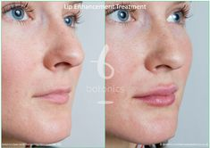 Restylane dermal filler lip enhancement treatment for fuller lips available at Carolina Laser & Cosmetic Center in Winston Salem, NC. Call today for your appointment! Dermal Fillers Lips, Lip Fillers, Wrinkle Remedies, Lip Augmentation, Thin Lips, Diy Lip Gloss, Lip Injections, Perfect Lips, Prevent Wrinkles