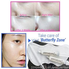 Do you know that almost skin problems such as blackheads, large pores and troubles come out on your 'Butterfly Zone'? It means that If you take care of your butterfly zone rightly, most of skin problems can be solved. Now you need this Air Laynic Pore Mask from 23Years Old.❤️ #wishtrend #23yearsold #skincare #butterflyzone #pore #pores #porecare #blackheads #troubles #breakouts #beauty