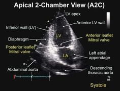 Apical 2 Chamber View TEE