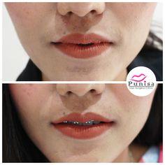 #Punisaclinic #ศัลยกรรม #ปาก #ศัลยกรรมปาก #ปากบาง #ปากกระจับ #ปากปีกนก  #Beauty #Number1 #Lips #LipReduction #LipSurgery #Professional #Lip #Reduction #Surgery #Thailand #plasticsurgery #lipreductionsurgery #thailand #doctorthinlips#Punisaclinic #lipsurgery #lipreduction#lipreductionsurgery #asianlips #plasticsurgeons#plasticsurgery #Thailandsurgery Lip Surgery, Septum Ring, Lips
