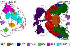 Creativity and Brain